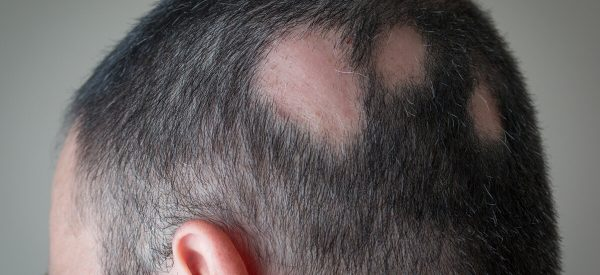 Remedies for Baldness (Alopecia)