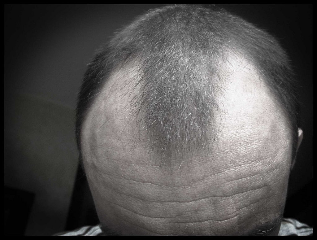 Remedies for Loss of Hair & premature Graying.