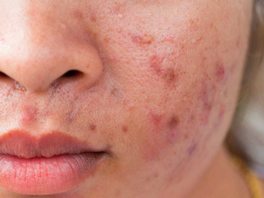 Remedies for Acne and Skin